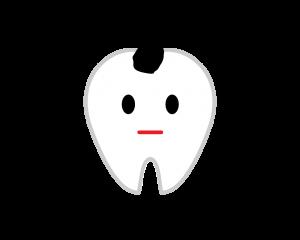 C0虫歯の進行